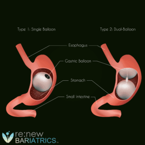 Gastric Balloon Procedure Illustration