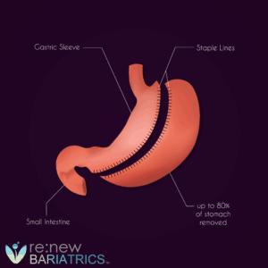 Gastric Sleeve Illustration