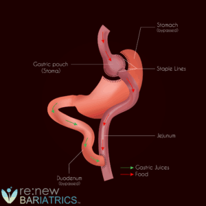 Gastric Bypass Surgery Illustration