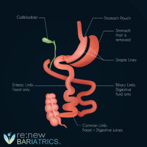 Duodenal Switch Procedure Illustraiton