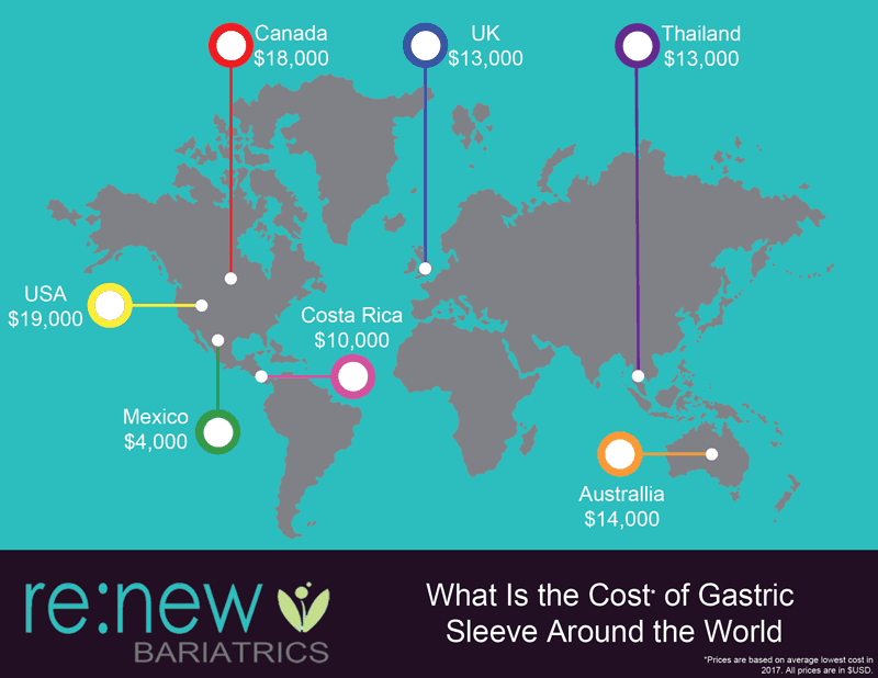 Map of Gastric Sleeve Costs
