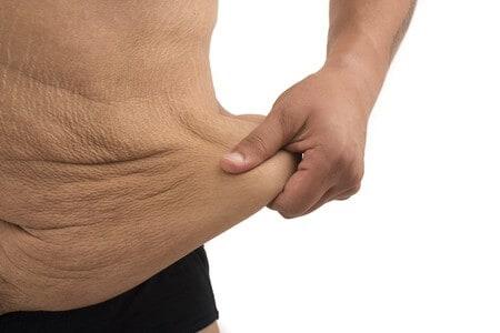 Überschüssige Haut