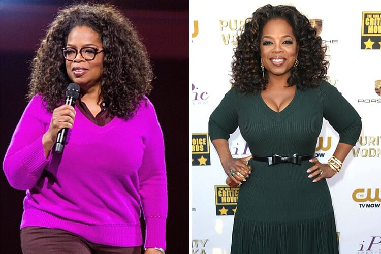 Celebrities Who Had Gastric Sleeve Surgery Before And Afters