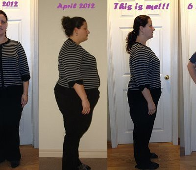 Gastric Sleeve Before and After 2